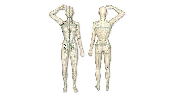 Linfedema: quando la linfa non può scorrere adeguatamente verso il cuore e ristagna - Linfedema: quando la linfa non può scorrere adeguatamente verso il cuore e ristagna