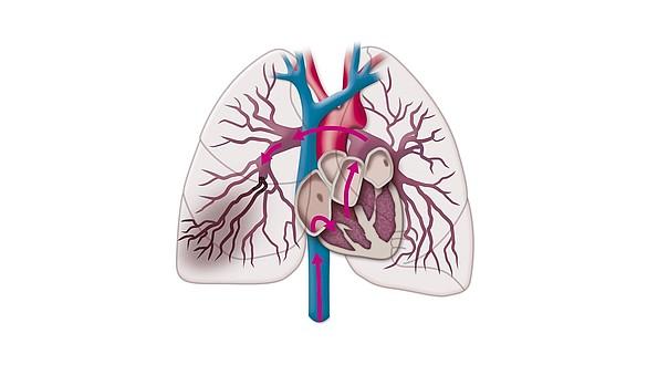 Embolia polmonare - Embolia polmonare